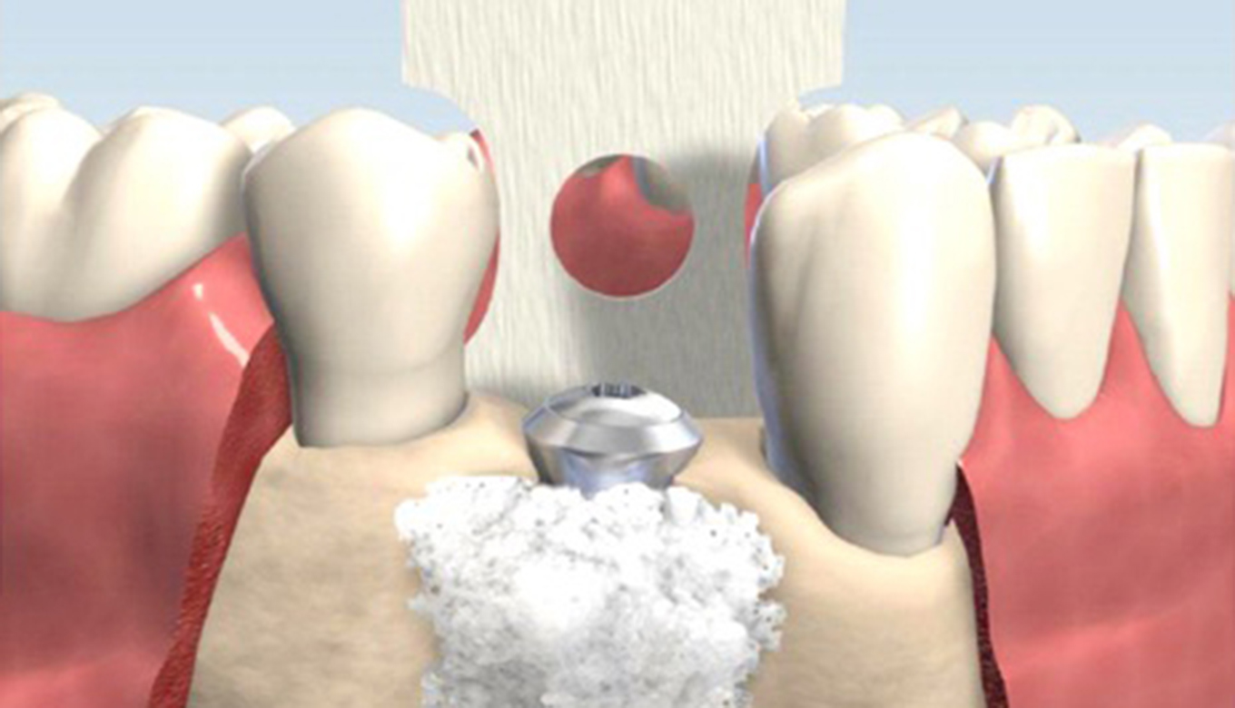 Bone Grafting Surgery